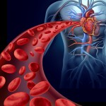 blood clots, risk factors, Prader-Willi Syndrome