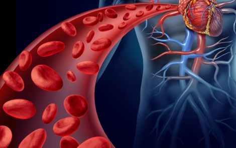 Factors Such as Older Age, Obesity, and Heart Disease Raise Risk of Blood Clots in PWS Patients, U.S. Survey Says